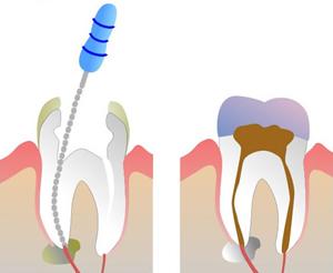 Lečenje kanala zuba